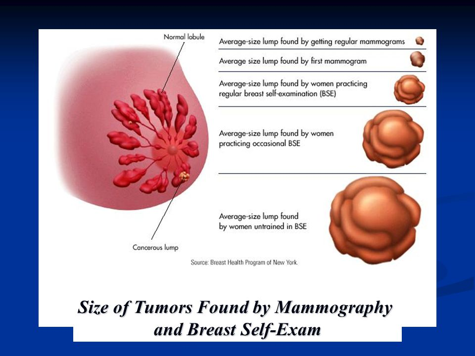 Size of Tumors Found by Mammography and Breast Self-Exam