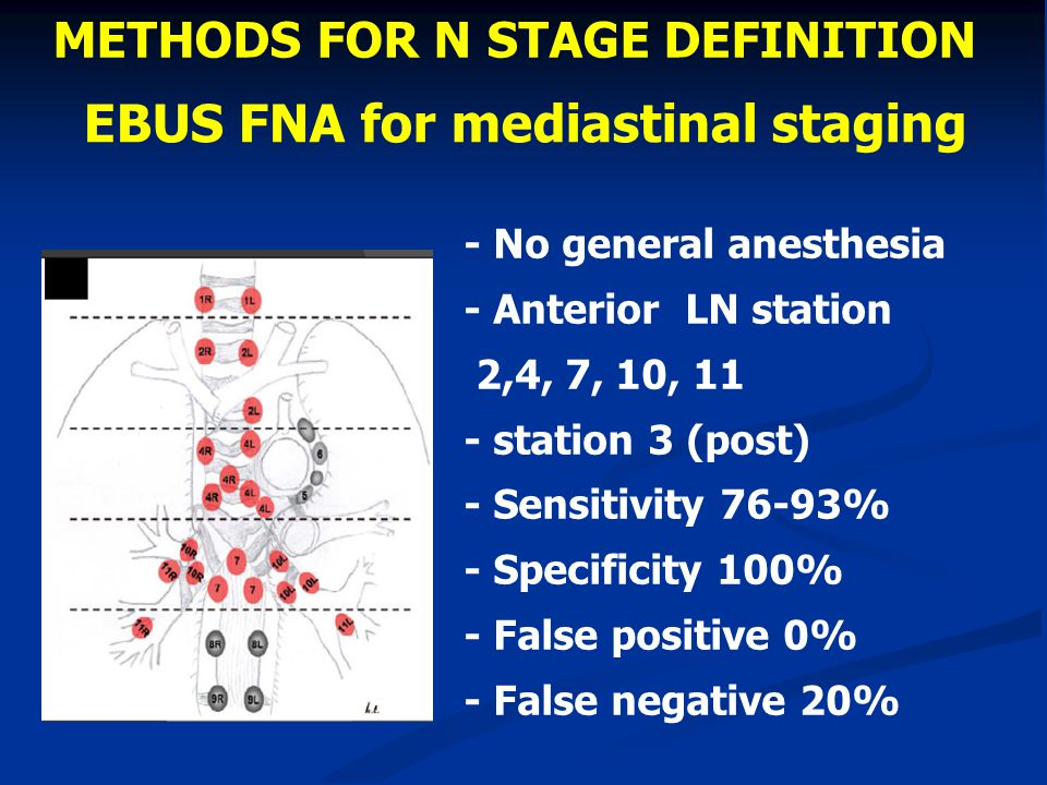 EBUS FNA for mediastinal staging - No general anesthesia - Anterior LN station 2,4, 7, 10, 11 - station 3 (post) - Sensitivity 76-93% - Specificity 10