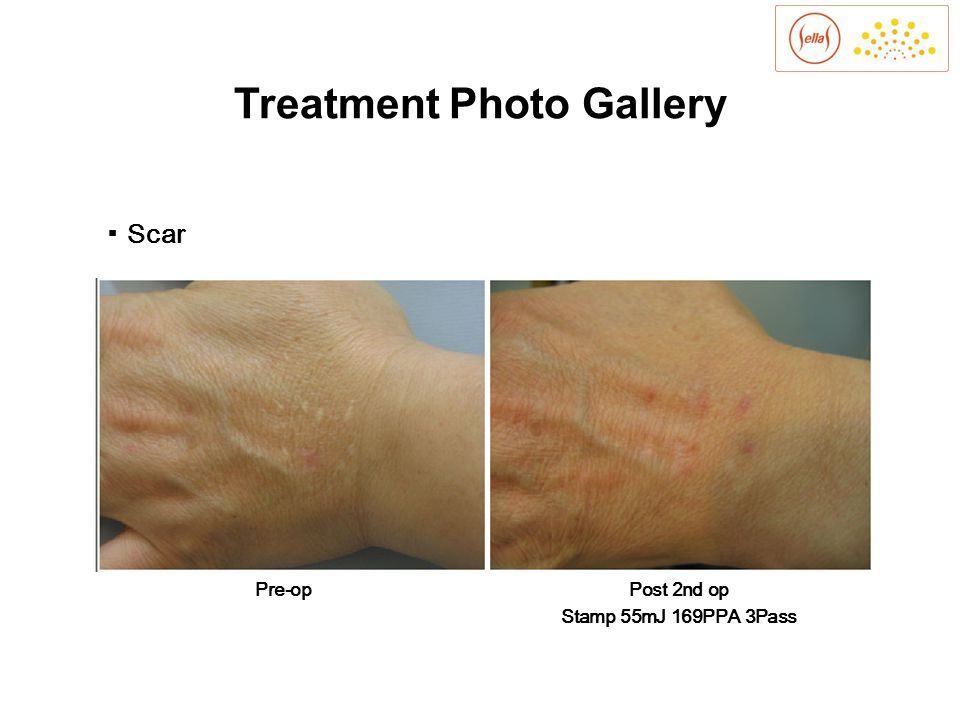 ▪ Scars Pre-opPost 1st op Stamp 55mJ 169PPA 4Pass Treatment Photo Gallery