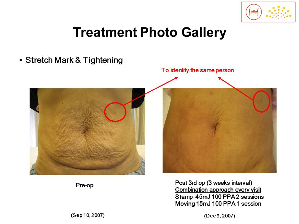 Before Treatment After 2 Months of Two Treatments Before Treatment After 2 Months of Two Treatments Sellas1550