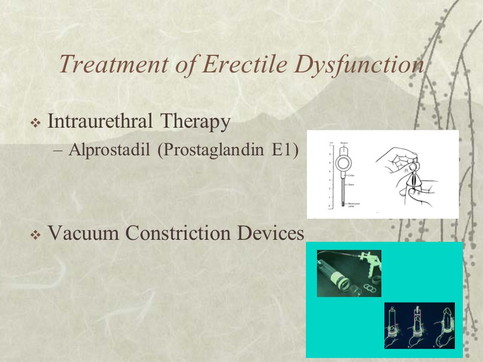 Treatment of Erectile Dysfunction  Intraurethral Therapy –Alprostadil (Prostaglandin E1)  Vacuum Constriction Devices