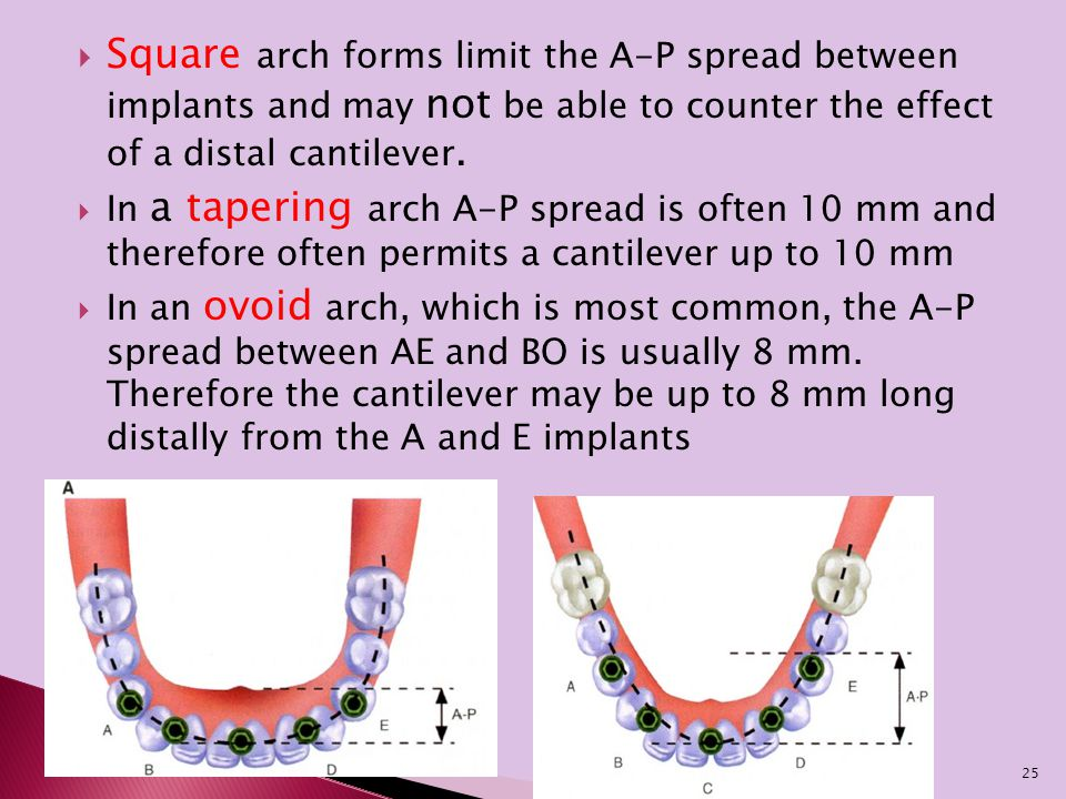  Square arch forms limit the A-P spread between implants and may not be able to counter the effect of a distal cantilever.  In a tapering arch A-P s