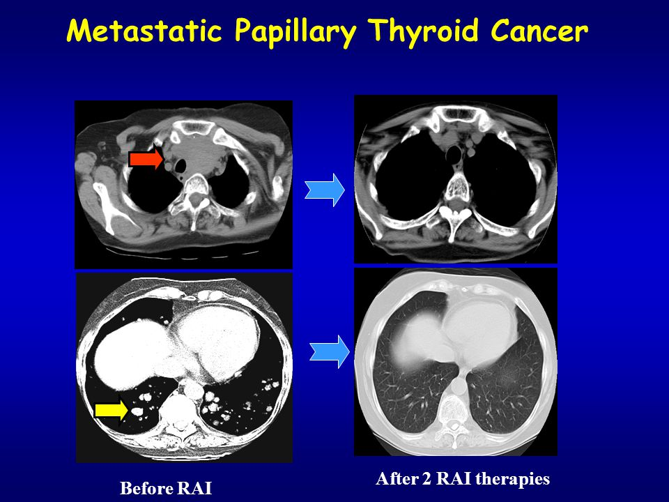 Metastatic Papillary Thyroid Cancer Before RAI After 2 RAI therapies
