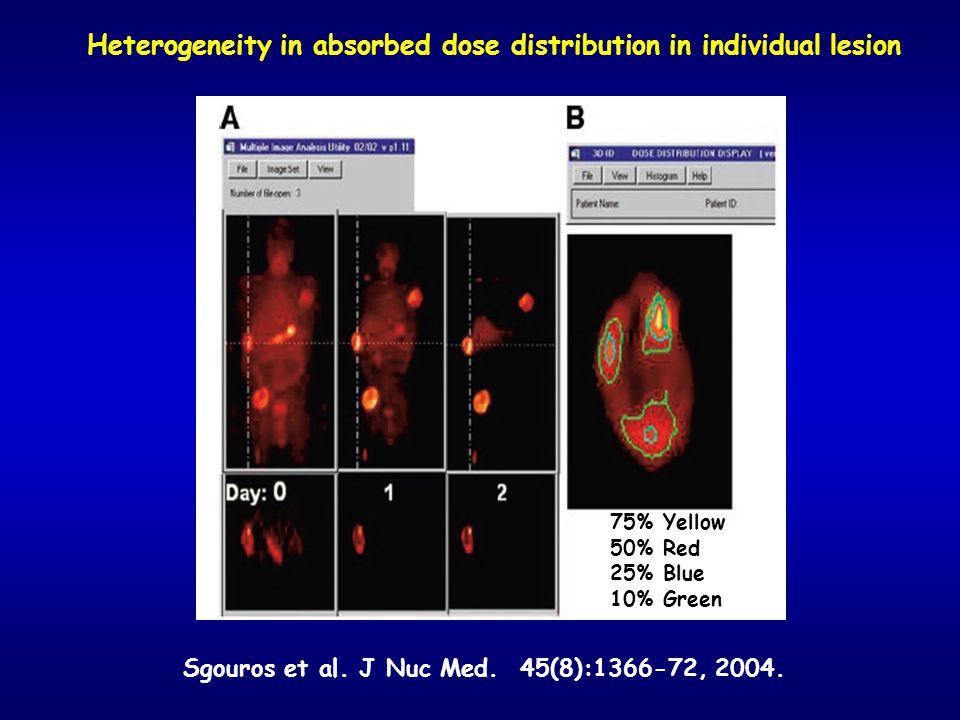 Heterogeneity in absorbed dose distribution in individual lesion Sgouros et al. J Nuc Med. 45(8):1366-72, 2004. 75% Yellow 50% Red 25% Blue 10% Green