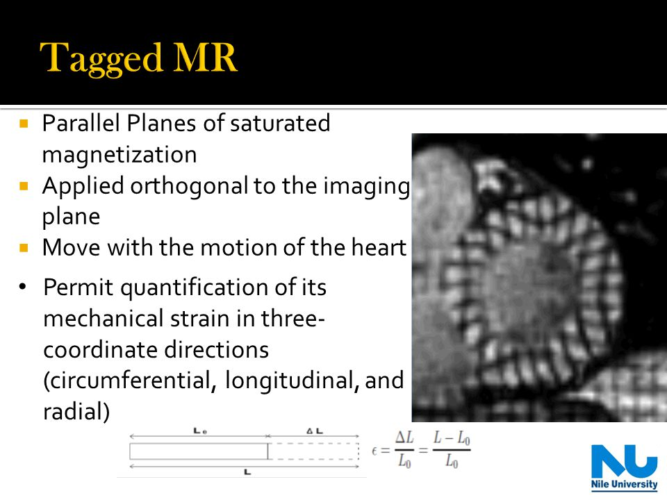  Parallel Planes of saturated magnetization  Applied orthogonal to the imaging plane  Move with the motion of the heart Permit quantification of its mechanical strain in three- coordinate directions (circumferential, longitudinal, and radial)