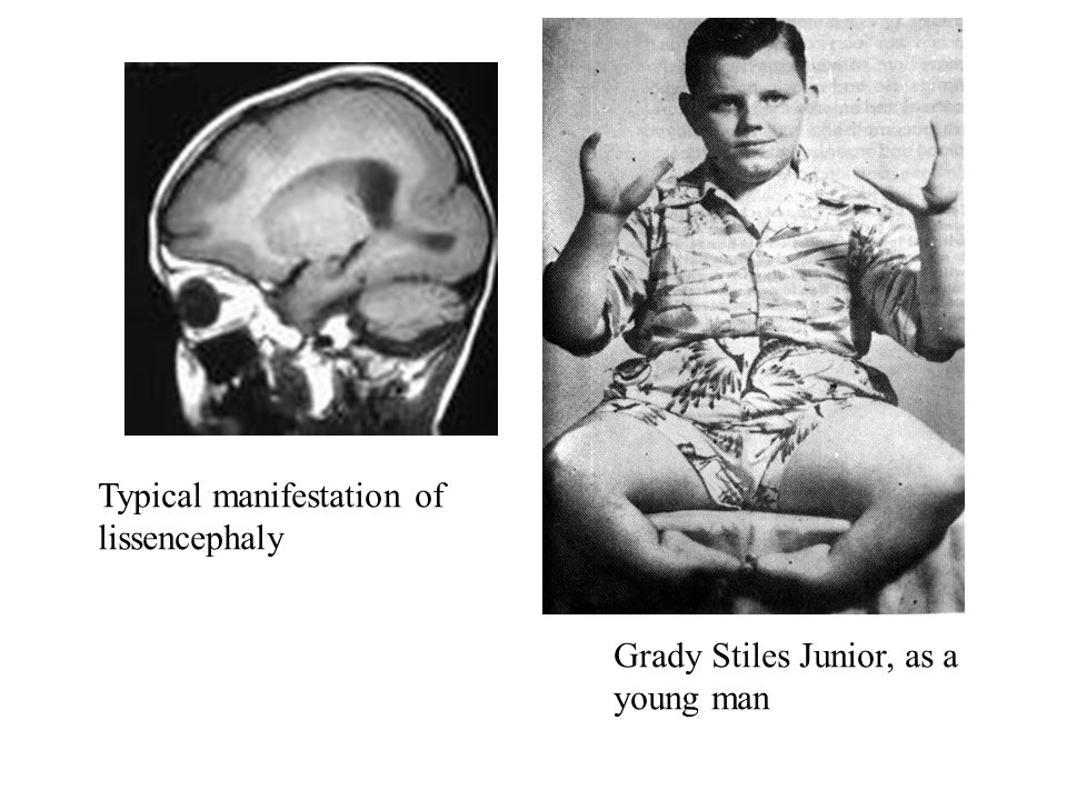 Grady Stiles Junior, as a young man Typical manifestation of lissencephaly