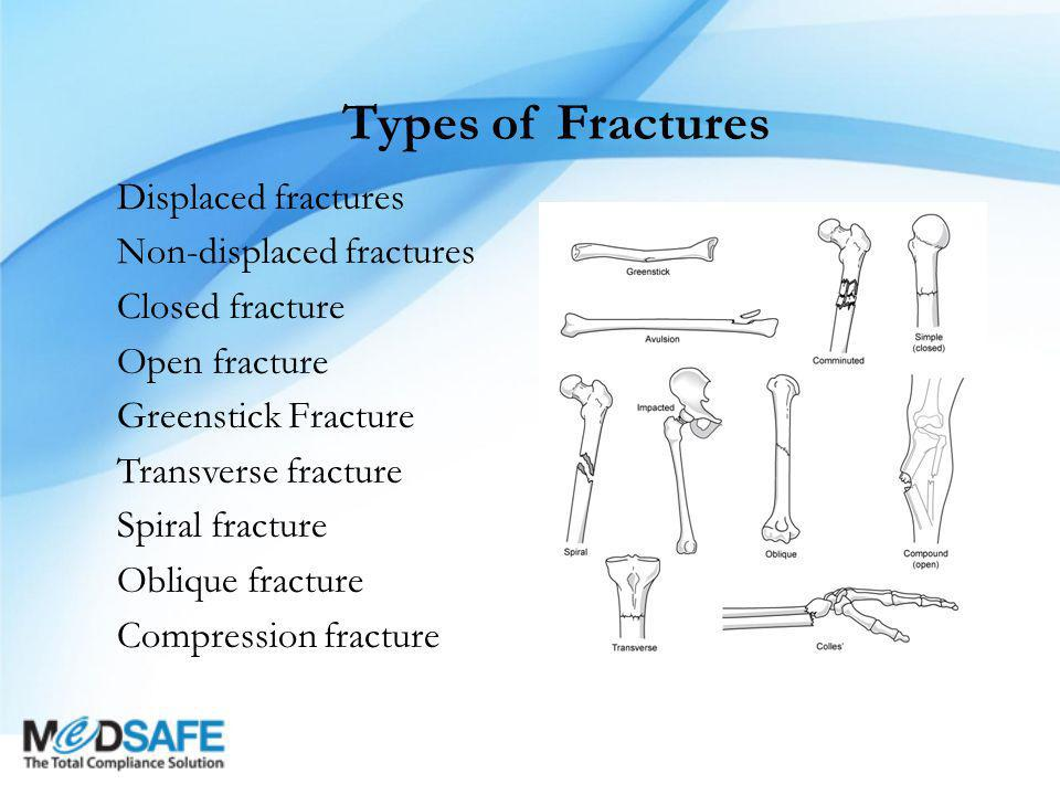 Types of Fractures Displaced fractures Non-displaced fractures Closed fracture Open fracture Greenstick Fracture Transverse fracture Spiral fracture Oblique fracture Compression fracture