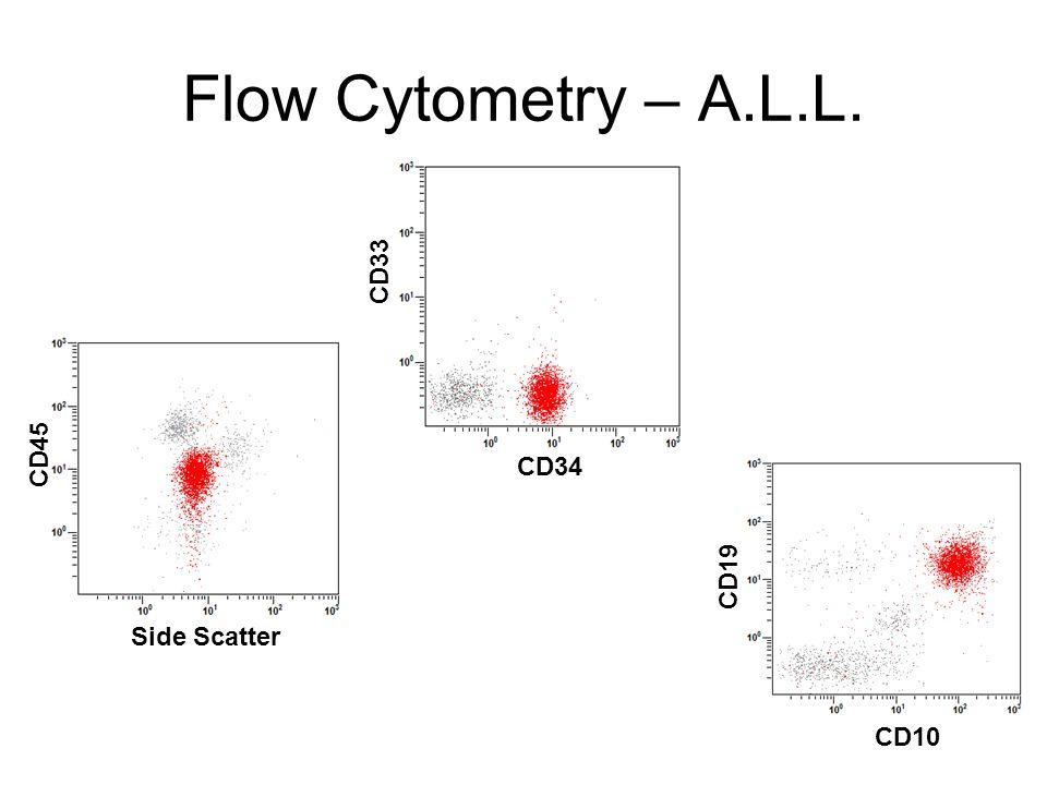 Flow Cytometry – A.L.L. CD45 Side Scatter CD33 CD34 CD19 CD10