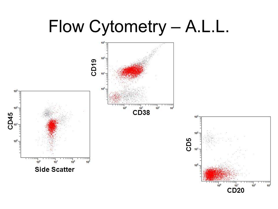 Flow Cytometry – A.L.L. CD45 Side Scatter CD19 CD38 CD5 CD20