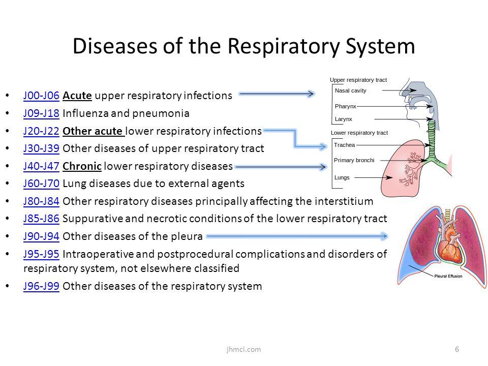 Diseases of the Respiratory System J00-J06 Acute upper respiratory infections J00-J06 J09-J18 Influenza and pneumonia J09-J18 J20-J22 Other acute lowe