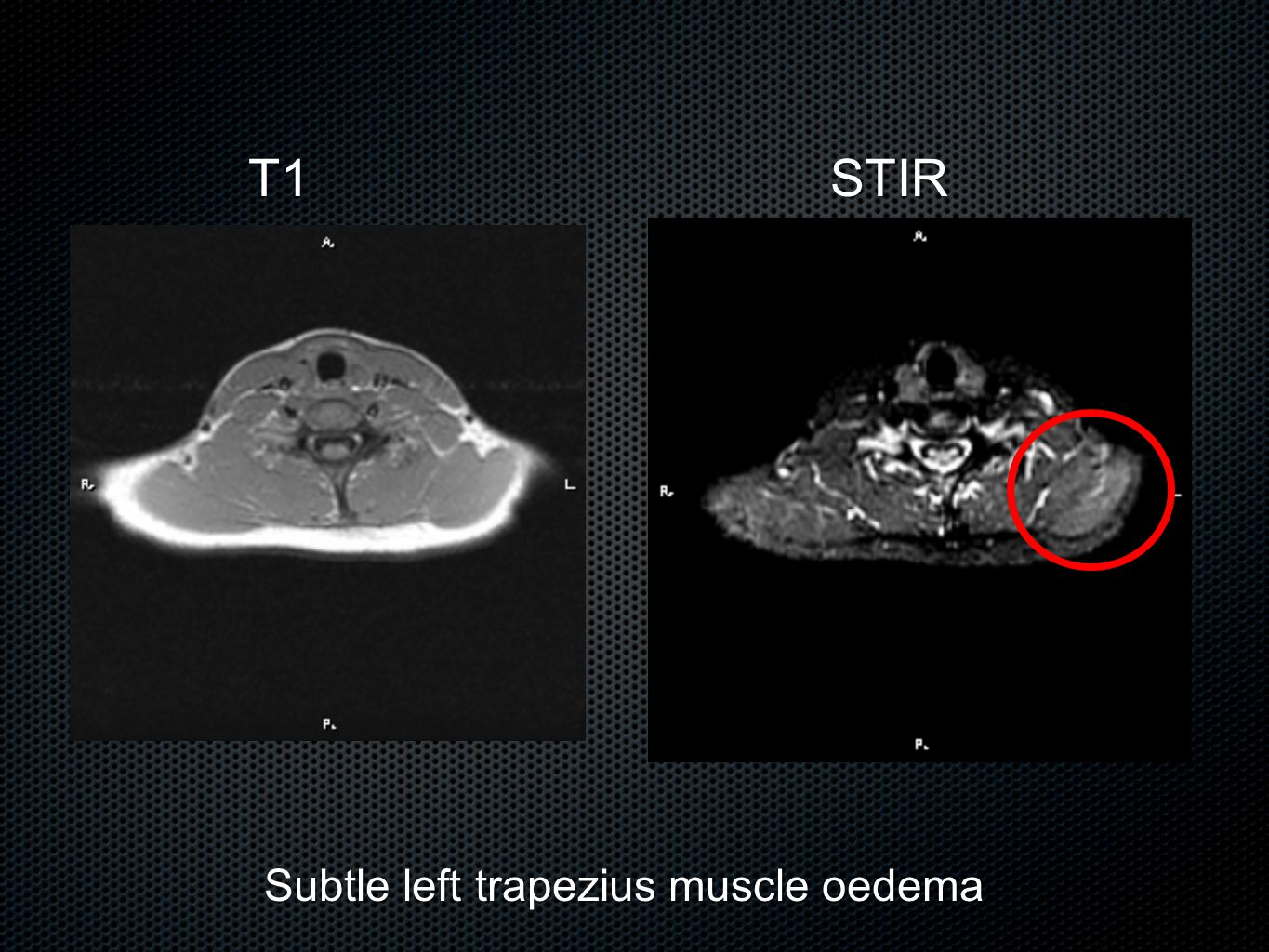 Subtle left trapezius muscle oedema T1STIR