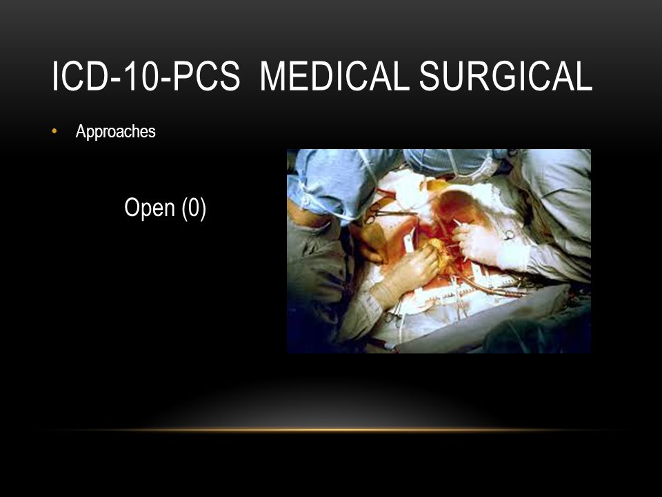 ICD-10-PCS MEDICAL SURGICAL Approaches Open (0)