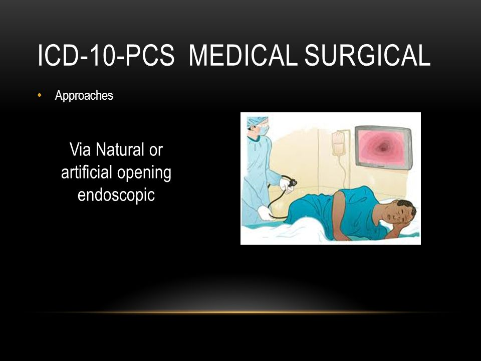 ICD-10-PCS MEDICAL SURGICAL Approaches Via Natural or artificial opening endoscopic