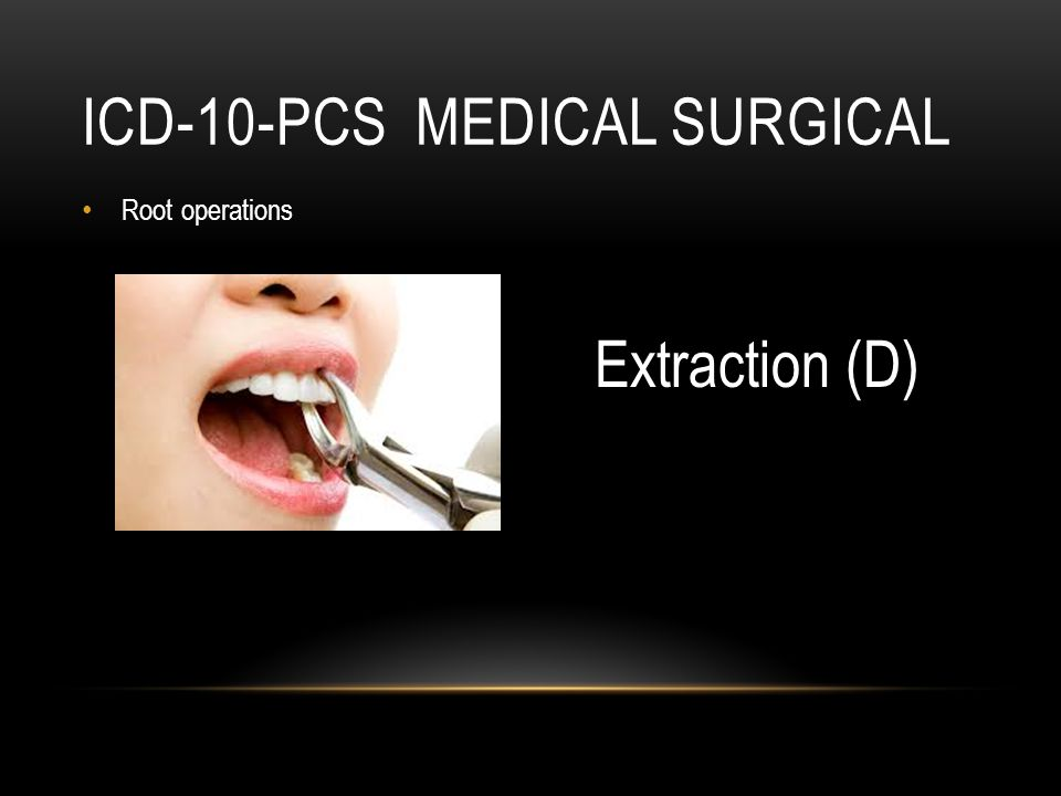 ICD-10-PCS MEDICAL SURGICAL Root operations Extraction (D)