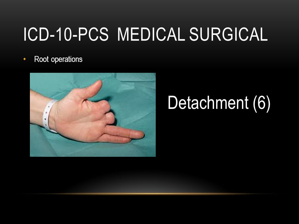ICD -10 PCS MEDICAL SURGICAL Devices Biological or synthetic material that takes the place of all or a portion of a body part (e.g.