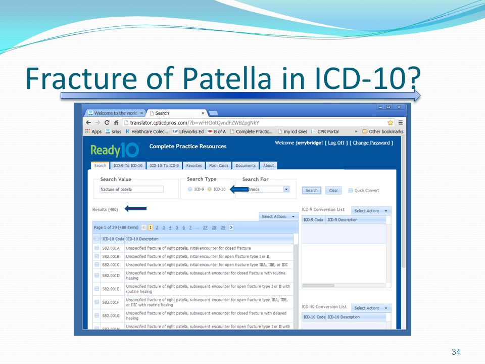 Fracture of Patella in ICD-10? 34