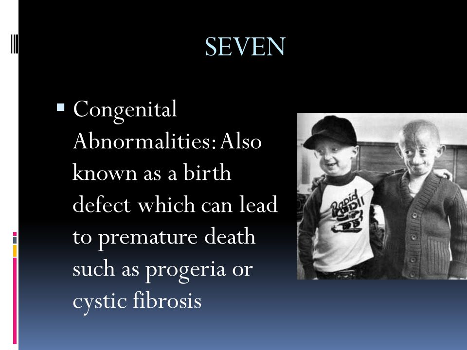SEVEN  Congenital Abnormalities: Also known as a birth defect which can lead to premature death such as progeria or cystic fibrosis