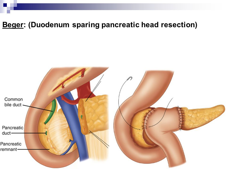 Beger: (Duodenum sparing pancreatic head resection)