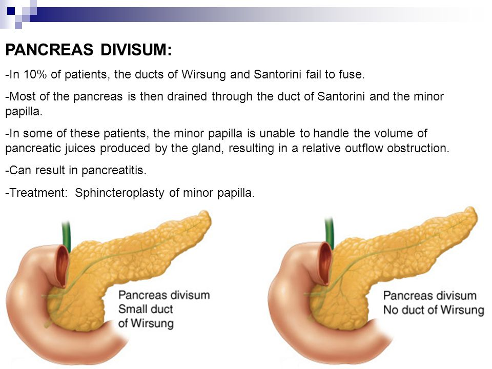 PANCREAS DIVISUM: -In 10% of patients, the ducts of Wirsung and Santorini fail to fuse. -Most of the pancreas is then drained through the duct of Sant