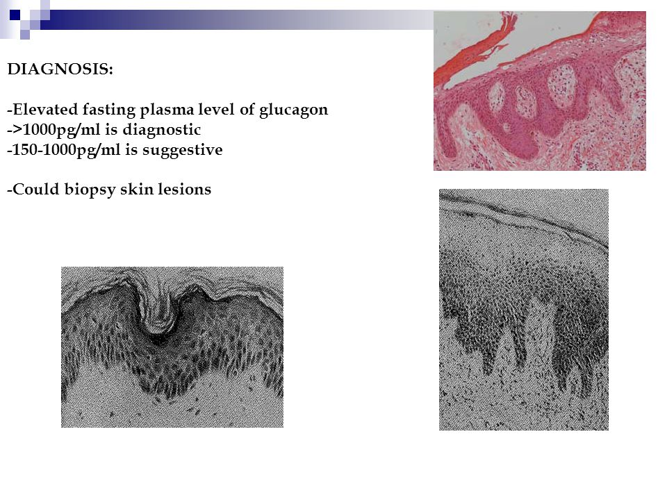 DIAGNOSIS: -Elevated fasting plasma level of glucagon ->1000pg/ml is diagnostic -150-1000pg/ml is suggestive -Could biopsy skin lesions