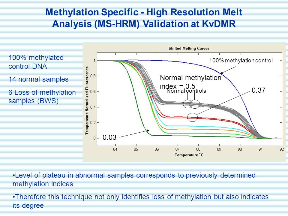 Methylation Specific - High Resolution Melt Analysis (MS-HRM) Validation at KvDMR 100% methylated control DNA 14 normal samples 6 Loss of methylation samples (BWS) 0.03 0.37 Normal methylation index = 0.5 Level of plateau in abnormal samples corresponds to previously determined methylation indices Therefore this technique not only identifies loss of methylation but also indicates its degree 100% methylation control Normal controls