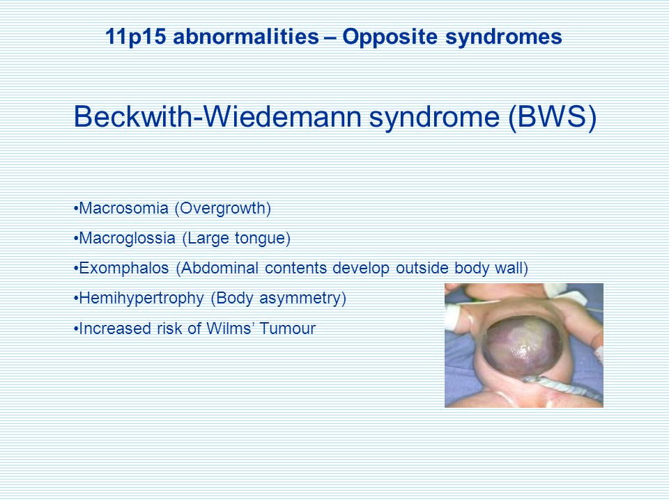 11p15 abnormalities – Opposite syndromes Beckwith-Wiedemann syndrome (BWS) Macrosomia (Overgrowth) Macroglossia (Large tongue) Exomphalos (Abdominal contents develop outside body wall) Hemihypertrophy (Body asymmetry) Increased risk of Wilms' Tumour