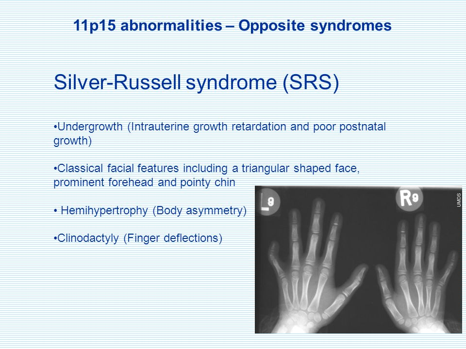 11p15 abnormalities – Opposite syndromes Silver-Russell syndrome (SRS) Undergrowth (Intrauterine growth retardation and poor postnatal growth) Classic