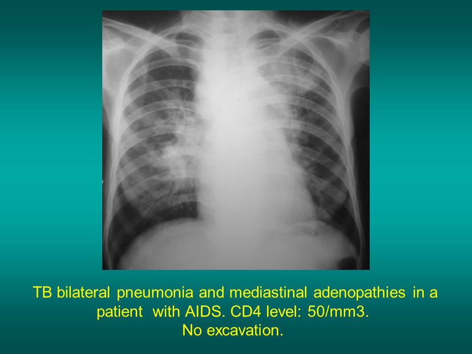 TB bilateral pneumonia and mediastinal adenopathies in a patient with AIDS.