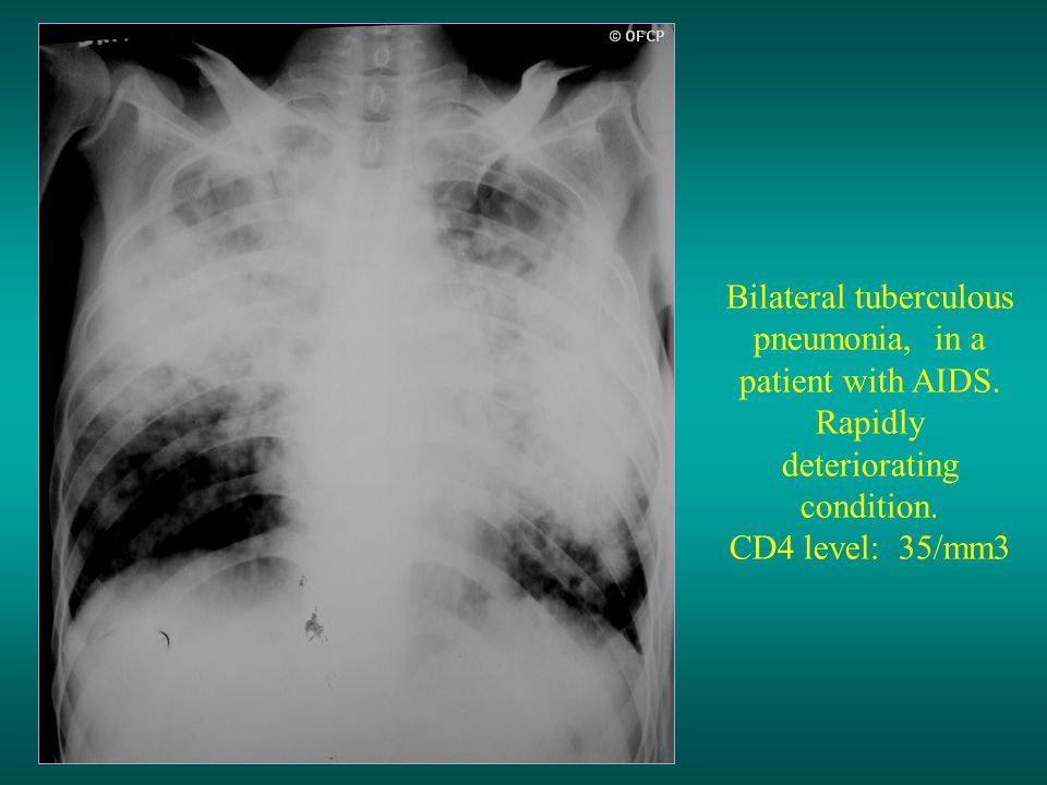 Bilateral tuberculous pneumonia, in a patient with AIDS.