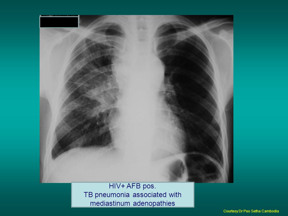HIV+ AFB pos. TB pneumonia associated with mediastinum adenopathies Courtesy Dr Peo Setha Cambodia