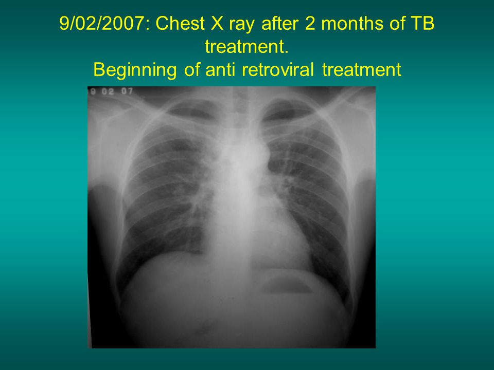 9/02/2007: Chest X ray after 2 months of TB treatment. Beginning of anti retroviral treatment