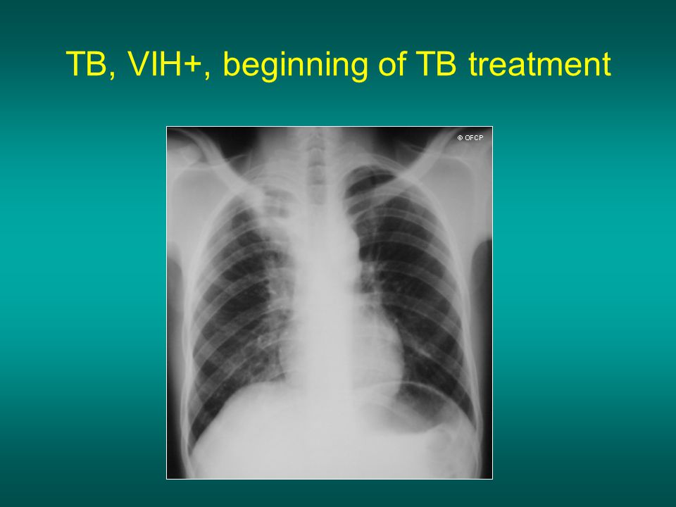TB, VIH+, beginning of TB treatment