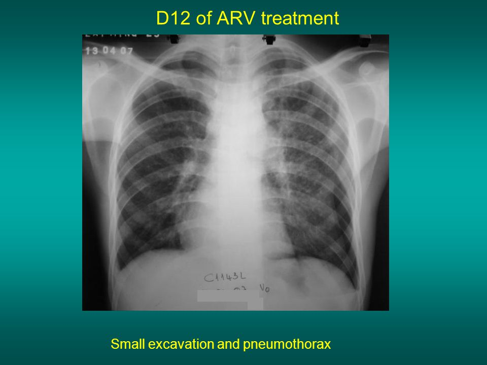 D12 of ARV treatment Small excavation and pneumothorax