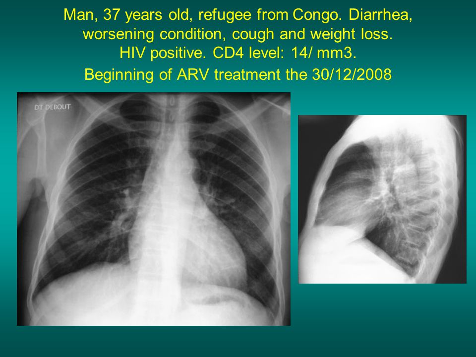 Man, 37 years old, refugee from Congo. Diarrhea, worsening condition, cough and weight loss.