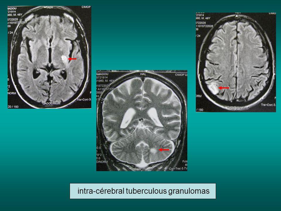 intra-cérebral tuberculous granulomas
