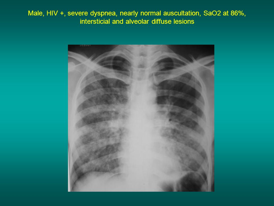 Male, HIV +, severe dyspnea, nearly normal auscultation, SaO2 at 86%, intersticial and alveolar diffuse lesions