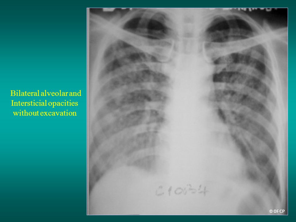 Bilateral alveolar and Intersticial opacities without excavation