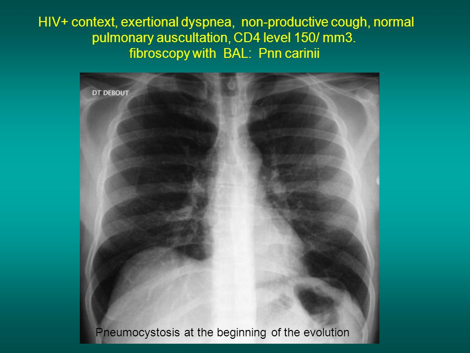 HIV+ context, exertional dyspnea, non-productive cough, normal pulmonary auscultation, CD4 level 150/ mm3.