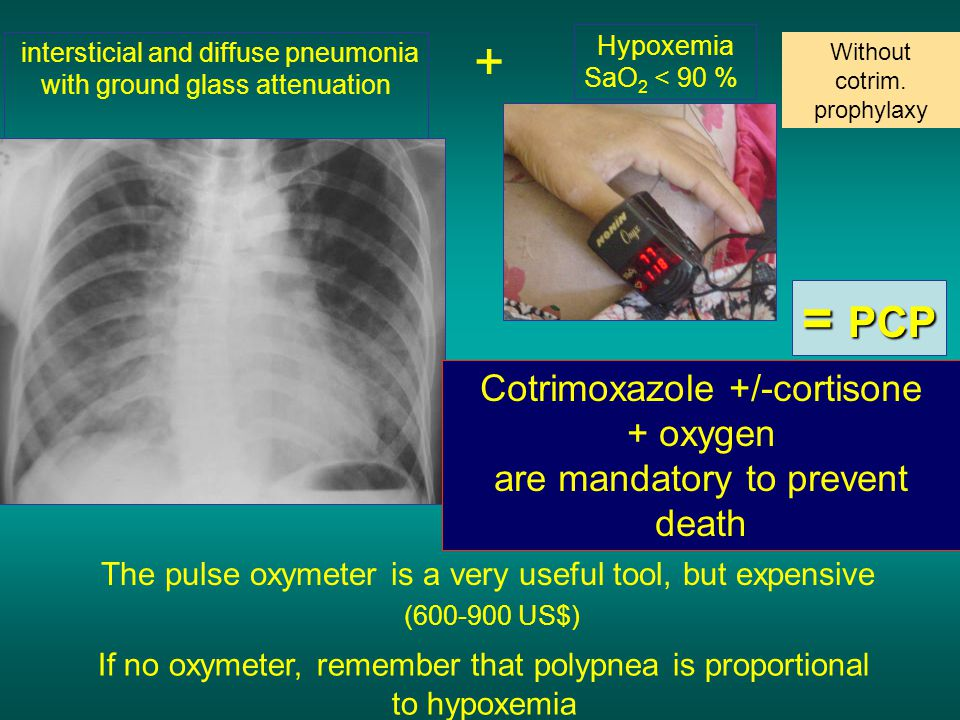 intersticial and diffuse pneumonia with ground glass attenuation + Hypoxemia SaO 2 < 90 % The pulse oxymeter is a very useful tool, but expensive (600-900 US$) Without cotrim.