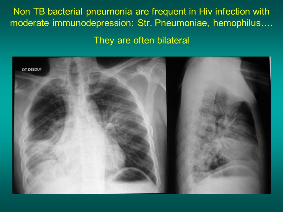 Non TB bacterial pneumonia are frequent in Hiv infection with moderate immunodepression: Str.