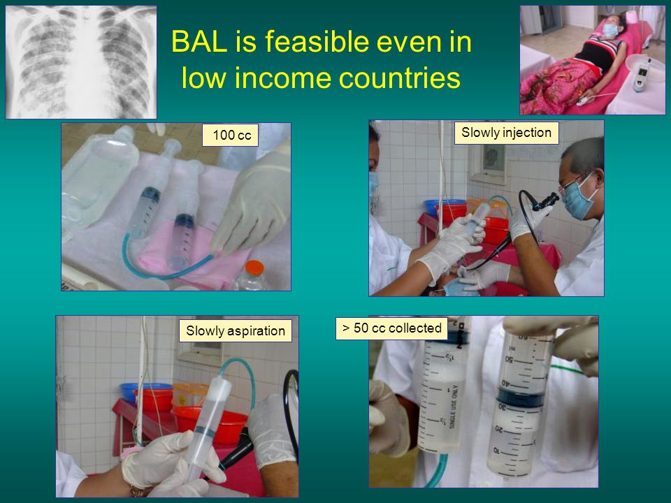 BAL is feasible even in low income countries 100 cc Slowly injection Slowly aspiration > 50 cc collected