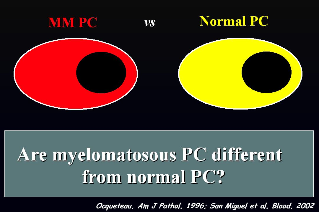 MM vs Normal BM plasma cells Abnormal plasma cells Normal plasma cells