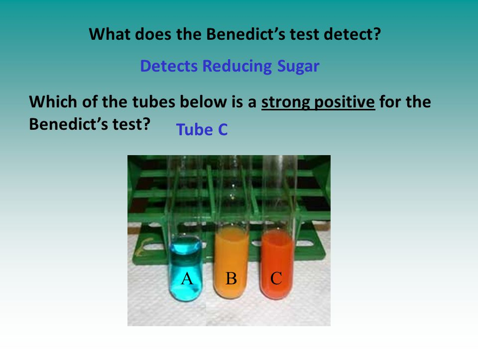 A B C What does the Benedict's test detect.