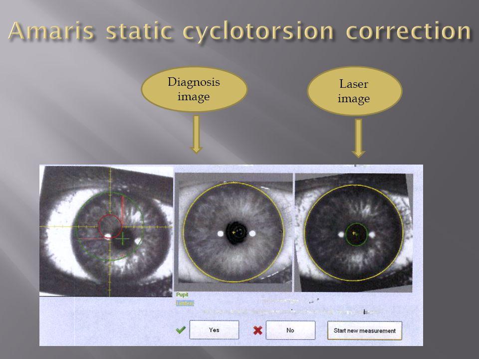 Diagnosis image Laser image