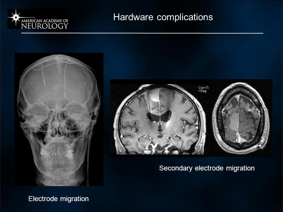 Electrode migration Secondary electrode migration Hardware complications