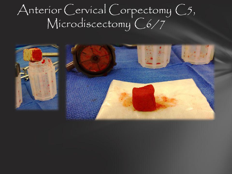 Anterior Cervical Corpectomy C5, Microdiscectomy C6/7
