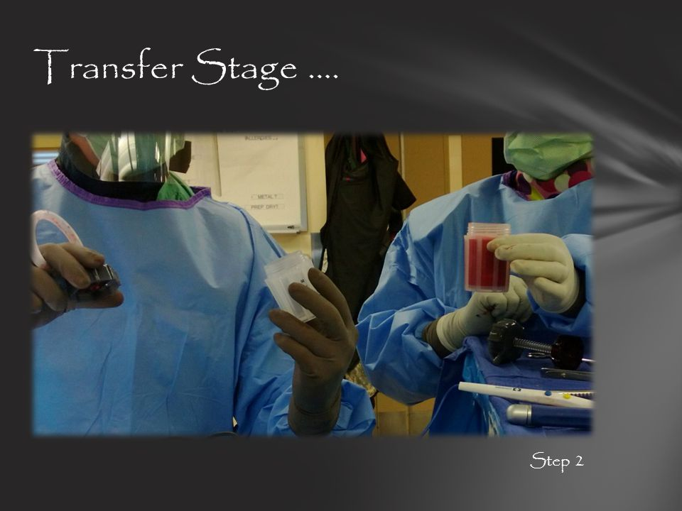 Transfer Stage …. Step 2