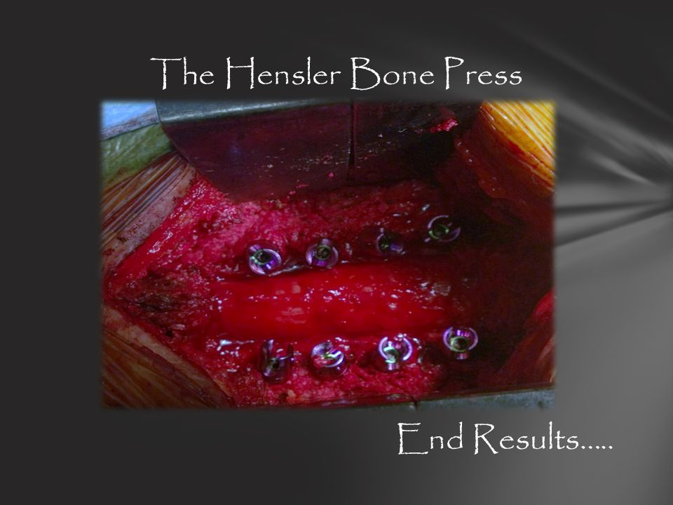 The Hensler Bone Press End Results…..
