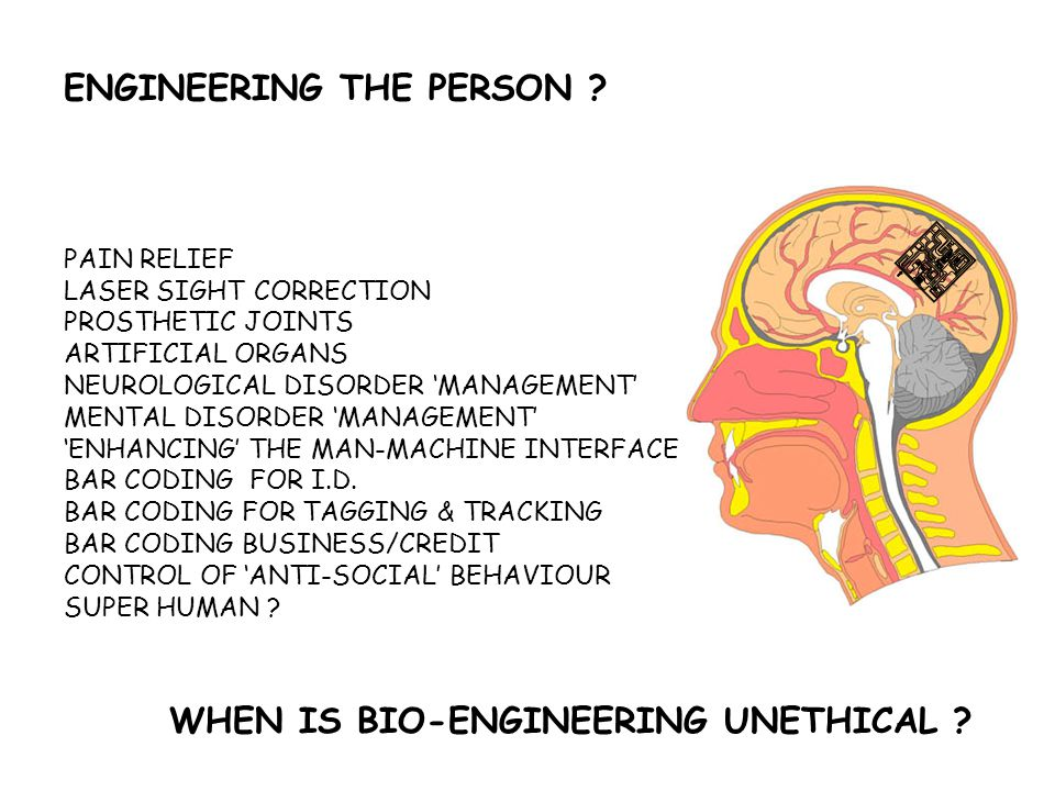 WHEN IS BIO-ENGINEERING UNETHICAL ? ENGINEERING THE PERSON ? PAIN RELIEF LASER SIGHT CORRECTION PROSTHETIC JOINTS ARTIFICIAL ORGANS NEUROLOGICAL DISOR