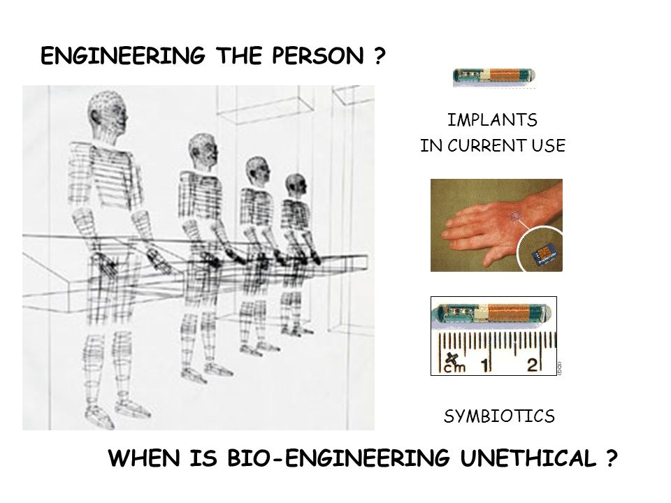 ENGINEERING THE PERSON WHEN IS BIO-ENGINEERING UNETHICAL IMPLANTS IN CURRENT USE SYMBIOTICS